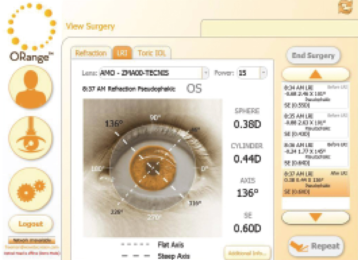 Limbal Relaxing Incision