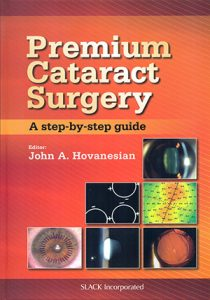 premium-cataract-surgery